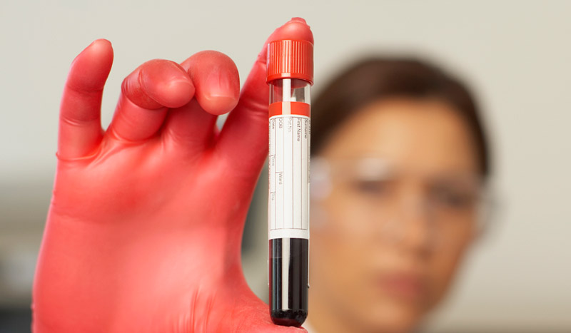INFORME: Interpreta tus análisis de sangre