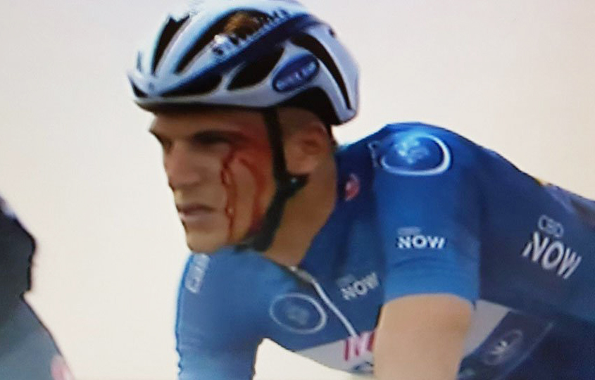 Grivko, descalificado del Dubai Tour por agredir a Kittel